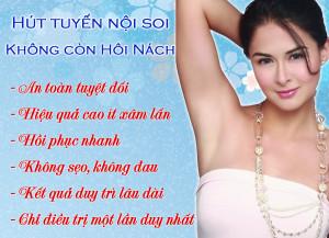 nhung-lo-ngai-khi-dieu-tri-hoi-nach-1