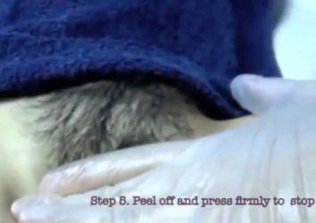 Hướng dẫn cách tẩy lông vùng kín ở phụ nữ