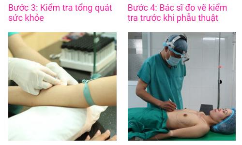 quy trình nâng ngực túi nano chip an toàn