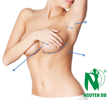 những thắc mắc phổ biến nâng ngực