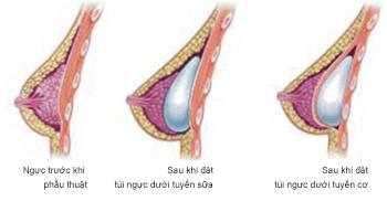 những thắc mắc phổ biến khi nâng ngực